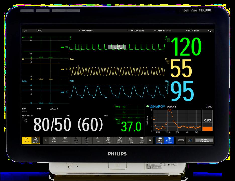 HeRO ES on MX850